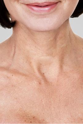 Fillerina® Neck & Cleavage Treatment